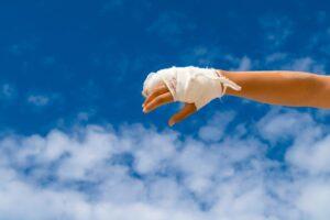 wybity palec dłoni